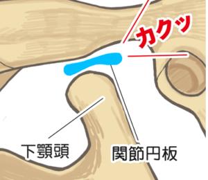 顎関節症のメカニズム